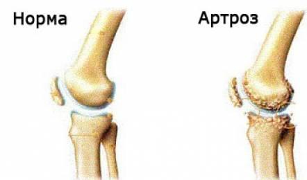 Деформирующий артроз коленного сустава 3 степени: операция ...