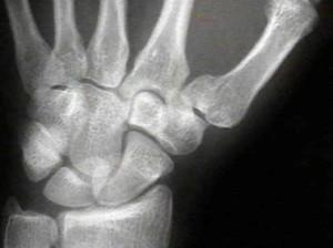 Осложнения после перелома лучезапястного сустава со смещением