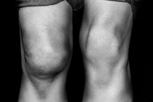 лечение деформирующего остеоартроза коленного сустава