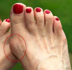 Проблемы с суставом большого пальца ноги