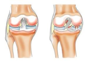 Как лечится деформирующий артроз коленного сустава 3 степени