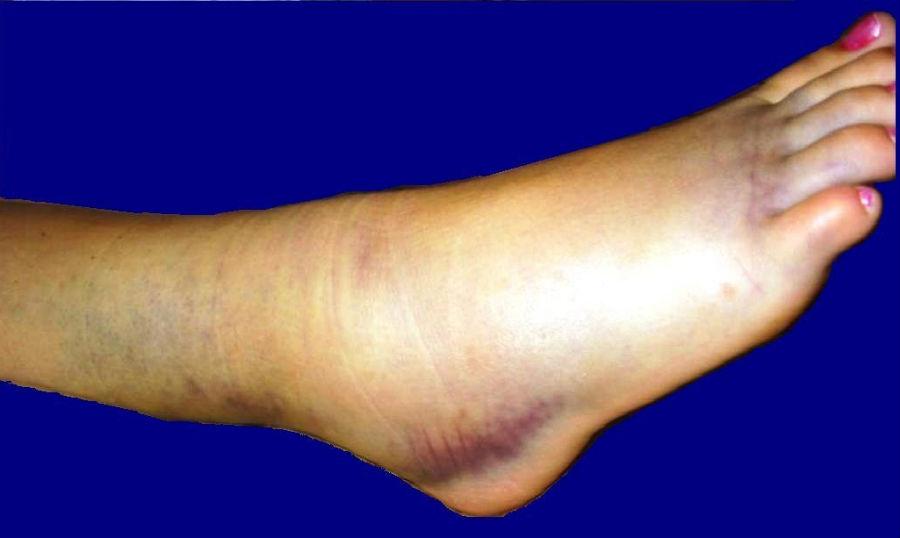 Остеоартроз голеностопного сустава 1-3 степени: симптомы и лечение