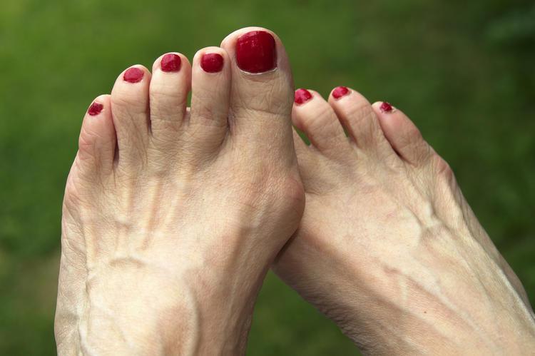 Как и чем лечить подагру на большом пальце ноги?