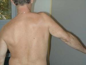 Лопаточно-плечевой периартрит