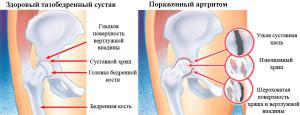 полиартрит тазобедренного сустава