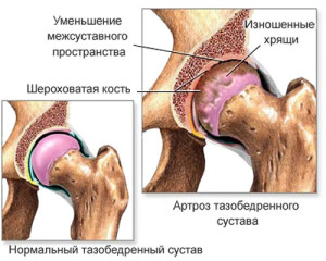 Как лечится коксартроз тазобедренного сустава 2 степени