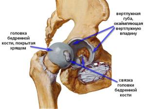 лечится коксартроз тазобедренного сустава