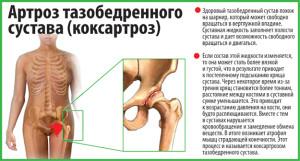 коксартроз тазобедренного сустава 2 степени
