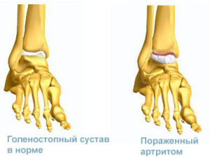 Симптомы и лечение артрита голеностопного сустава