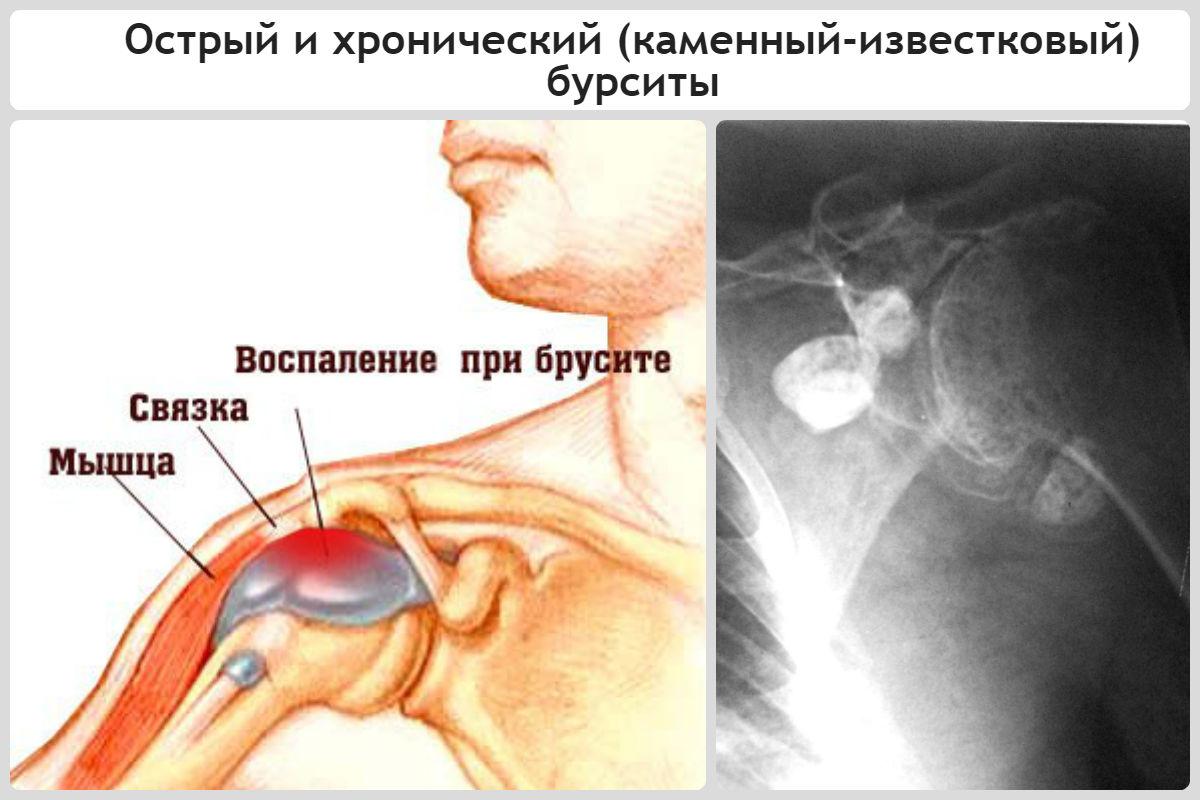 плечевой сустав воспаление симптомы