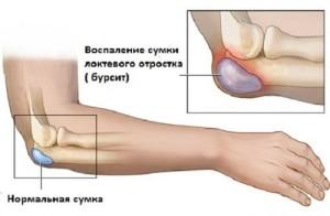 Известковый бурсит в плечевом суставе