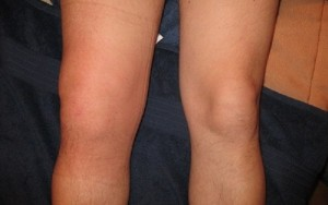 лечение туберкулеза коленного сустава