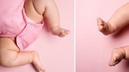 simptomy-i-lechenie-displazii-tazobedrennogo-sustava-u-novorozhdennogo