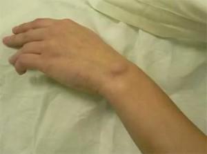 Изображение - Чем лечить воспаление суставов на руках kak-lechitsya-vospalenie-sustavov-kisti-ruk-300x223
