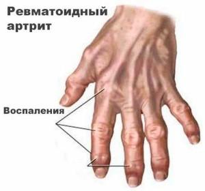 Изображение - Чем лечить воспаление суставов на руках kak-lechitsya-vospalenie-sustavov-kisti-ruk1-300x280