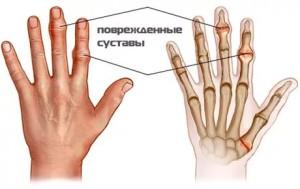 Изображение - Чем лечить воспаление суставов на руках kak-lechitsya-vospalenie-sustavov-kisti-ruk2-300x189