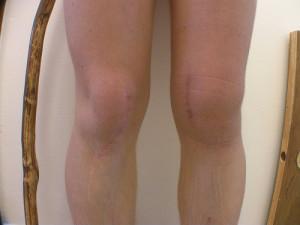 Гонартроз 2 3 степени коленного сустава лечение