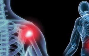 Изображение - Посттравматические боли в плечевом суставе kak-lechit-posttravmaticheskij-artroz-plechevogo-sustava-300x188